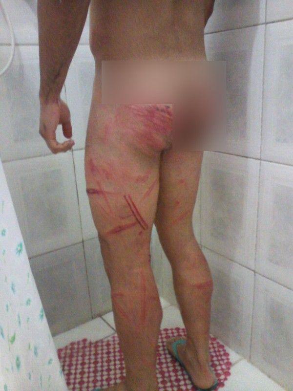 agredido - CRUELDADE: Soldado perde testículo após 'trote' e quer abandonar carreira militar - minuto barra