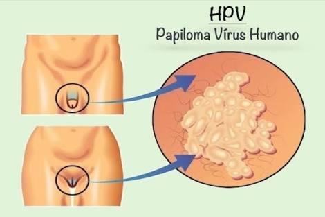 images 3 - Mais de 50% dos jovens em São Luís, estão infectados pelo vírus HPV - minuto barra