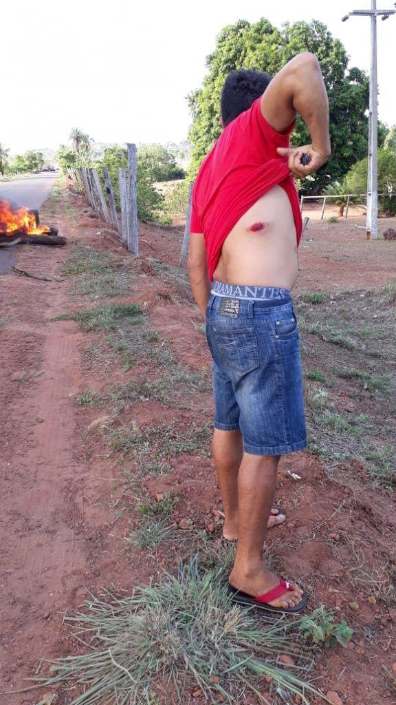 IMG 20181026 WA0034 576x1024 - LOUCURA!! Manifestantes são feridos à bala em Formosa da Serra Negra durante protesto na MA-006 - minuto barra