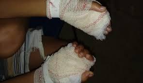 mão 2 - Mãe queima as mãos do próprio filho no Maranhão e é presa - minuto barra