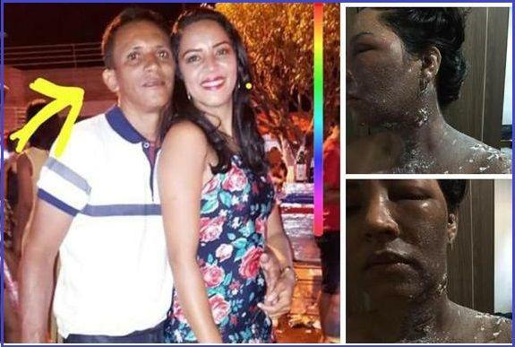 covardia no maranhao ex vereador joga agua quente no rosto da propria esposa 1 - COVARDIA: No Maranhão, ex-vereador joga água quente no rosto da própria esposa - minuto barra