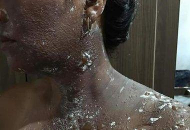 COVARDIA: No Maranhão, ex-vereador joga água quente no rosto da própria esposa