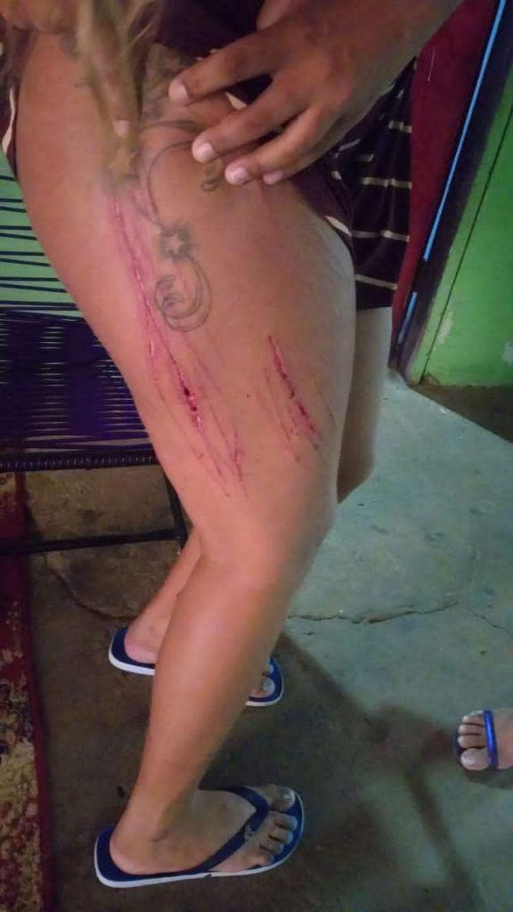 advogado e preso no em flagrante na cidade de grajau acusado de torturar garota de programa 3 576x1024 - Advogado é preso em flagrante na cidade de Grajaú acusado de torturar garota de programa