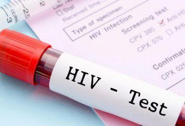 Mais de 100 pessoas foram diagnosticadas com HIV este ano no Maranhão